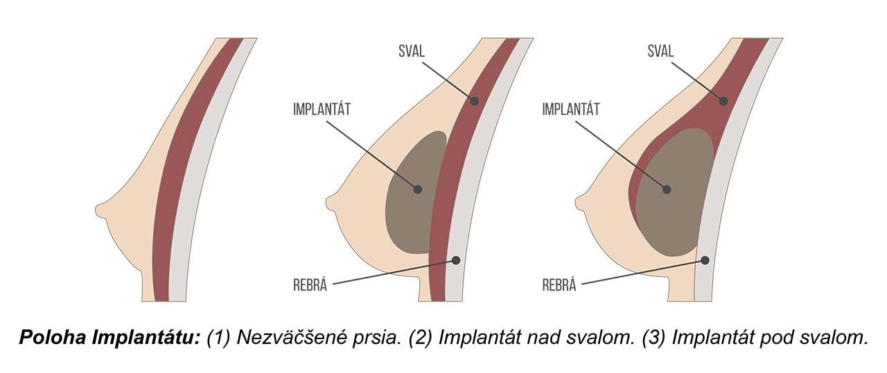 Plastická operácia pŕs vkladanie silikónu pod sval a pod žľazu