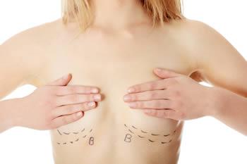 umelé prsia sa vyoperujú